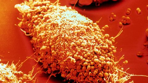 Hier haben sich zahlreiche Neisserien, die Erreger der Gonorrhoe (Tripper), an die Oberfläche einer Epithelzelle angeheftet; sie sind im Begriff, in die Zelle einzudringen. Epithelzellen sind die oberste Schicht des menschlichen Haut-und Schleimhautgewebes.