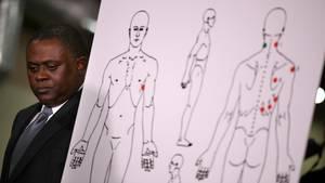 Sacramemto - Gerichtsmediziner dokumentiert die Einschussmale auf dem Rücken des Farbigen Stephon Clark