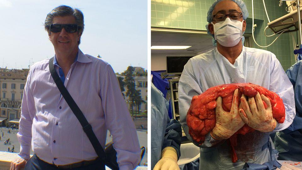 """Kevin Daly mit """"Bierbauch"""" - Ärzte entfernen Tumor"""