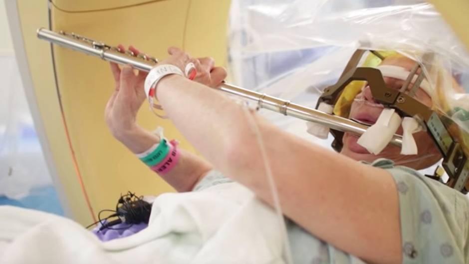 Stimulierender Eingriff: Frau spielt Flöte während Hirn-Operation