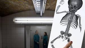 Keller des Instituts für Anatomie der Uni Halle (Saale), CT-Aufnahme einer Kinderleiche