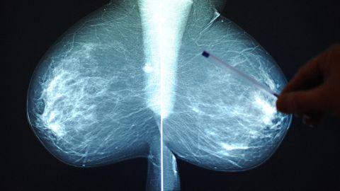 Die Röntgenaufnahme einer Brust während einer Brustkrebsvorsorge im Wiener St. Josef Krankenhaus