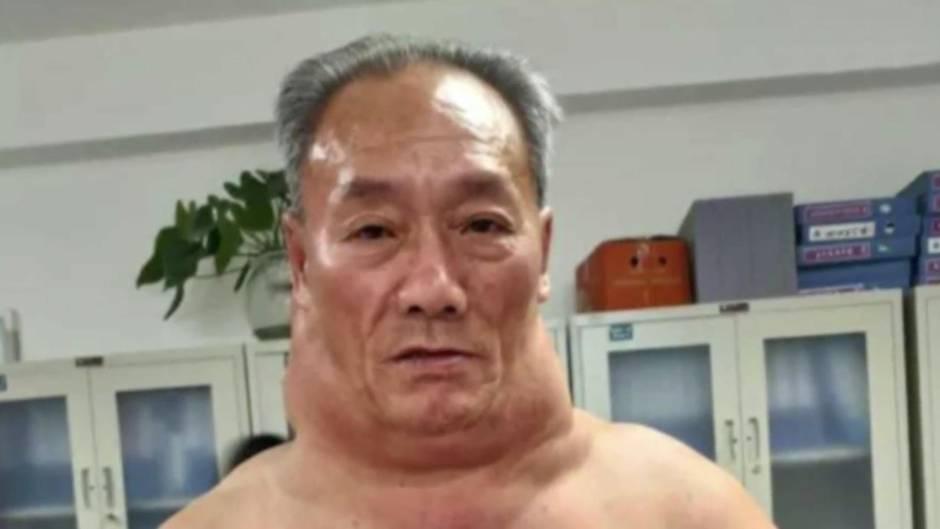 """Madelung-Fetthals: Chinese trinkt """"Wein wie Wasser"""": Das sind die Folgen für seinen Körper"""