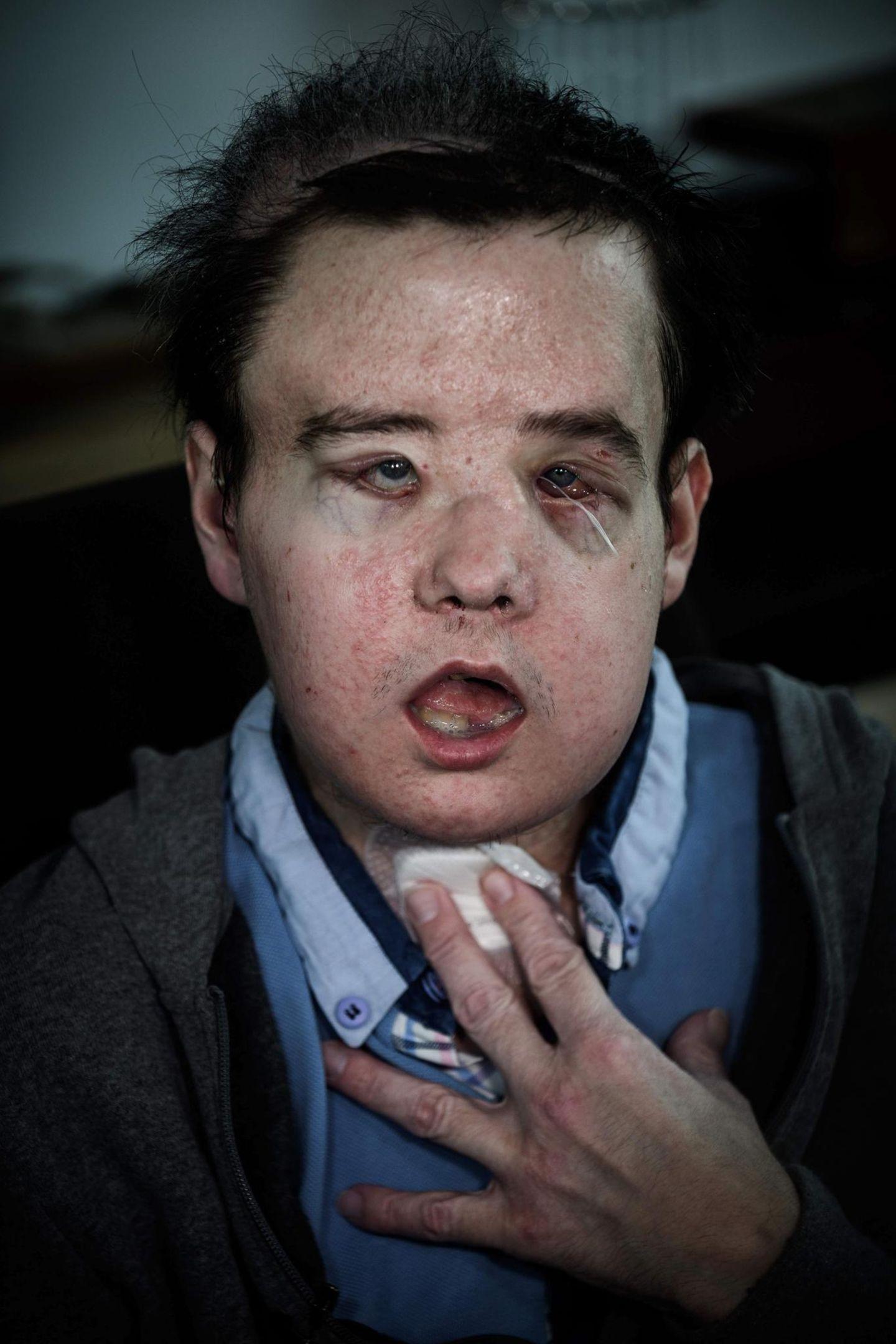 Portrait von Jérôme Hamon nach Operation