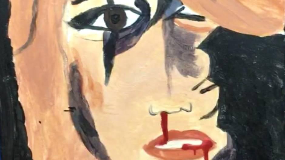Verstörende Erinnerung: Blut rinnt aus Mund und Nase