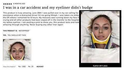 5 von 5 Sternen: Nach Autounfall: Diese Make-up-Bewertung hat auf Twitter hunderttausende Likes