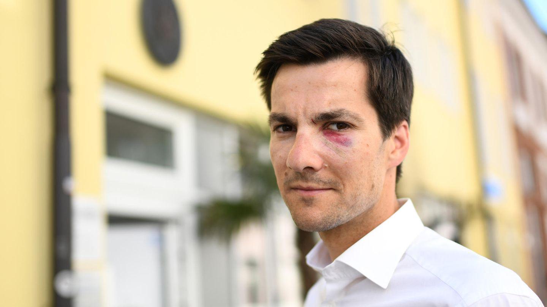 """Nach Angriff auf Wahlparty: """"Ich habe mir am meisten Sorgen um meine Frau gemacht"""", sagt Martin Horn"""