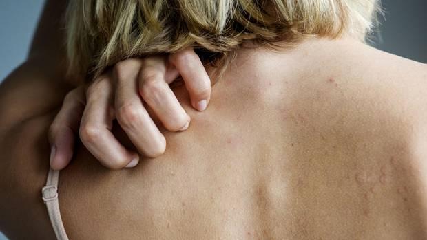Eine junge Frau kratzt sich am Rücken