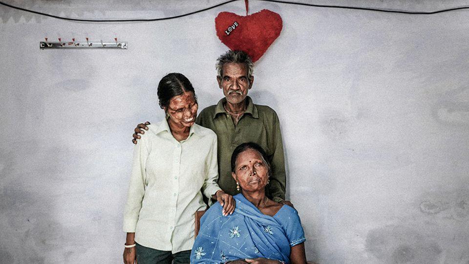Mit Säure verätzt ein Mann Frau und Tochter das Gesicht