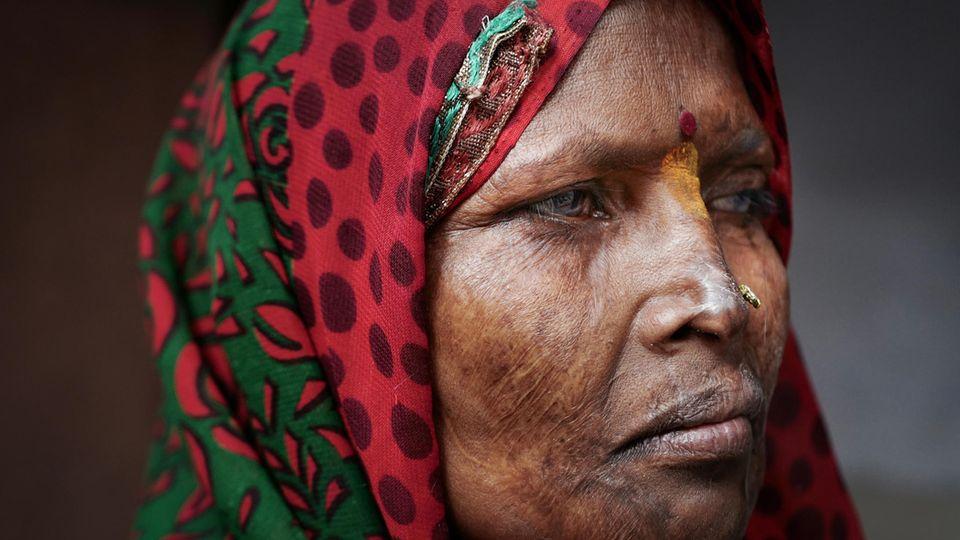 Für immer gezeichnet: Geeta, über zwei Jahrzehnte nach der schrecklichen Nacht
