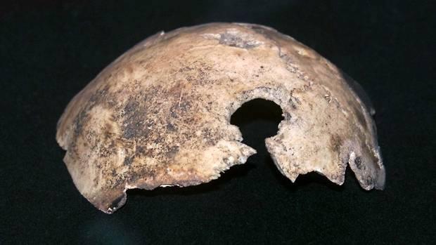 Adolf Hitler - Fragment der Schädeldecke mit Durchschussloch