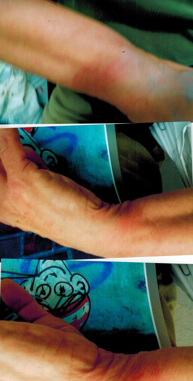 Drei Fotos von geröteten Handgelenken