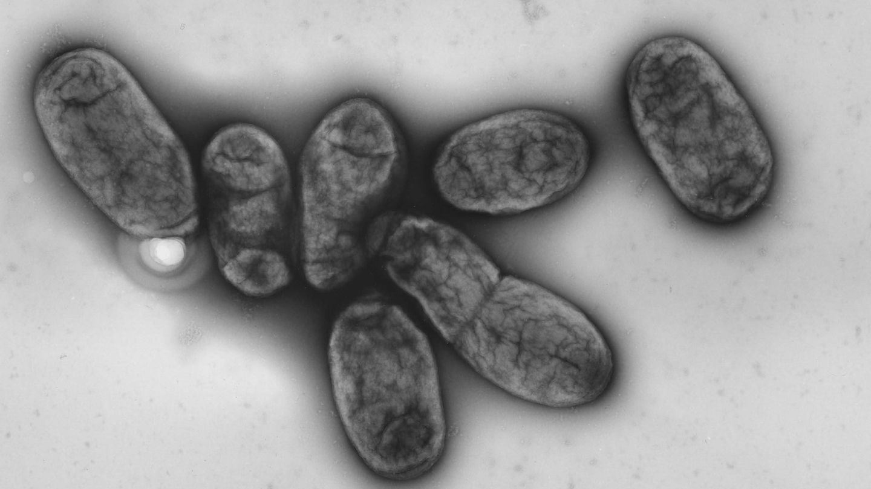 """Yersinia pestis"" - der Erreger der Pest"