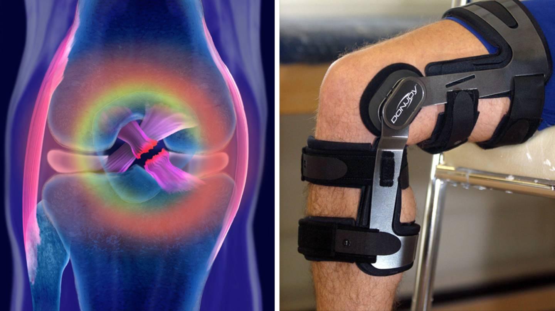 Auswirkungen Gewichtsverlust Arthrose des Knies