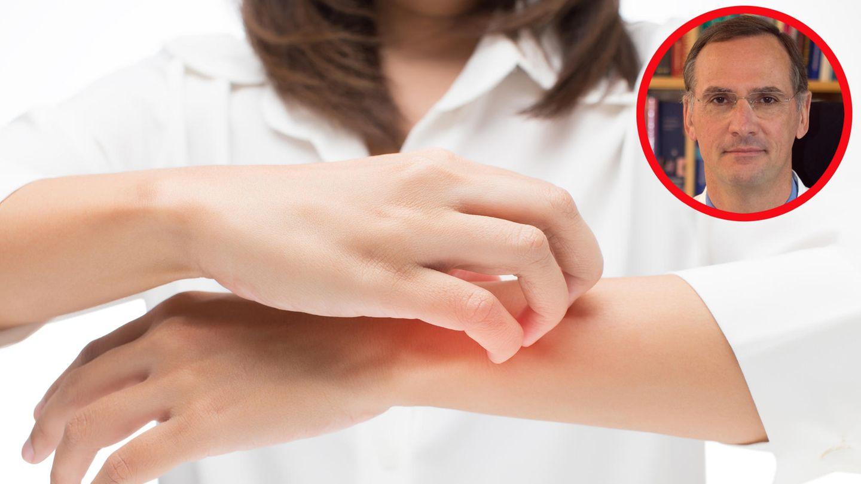 """""""Kein Patient ist wie der andere"""": Was hilft (wirklich) gegen Neurodermitis? - Experte klärt auf"""