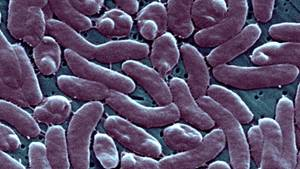 Eine Gruppierung von Vibrio Vulnificus-Bakterien unter dem Mikroskop