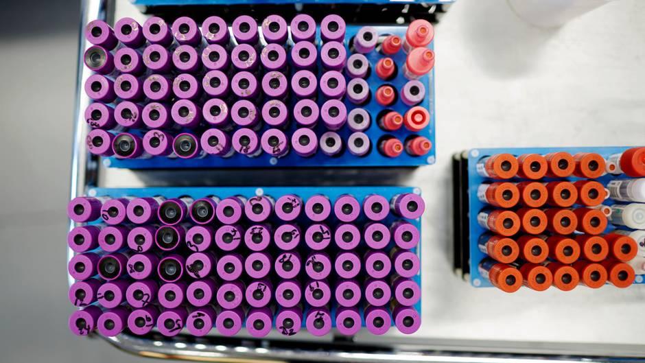 Patientenröhrchen warten während der Durchführung eines HIV-Suchtests auf die Weiterverarbeitung