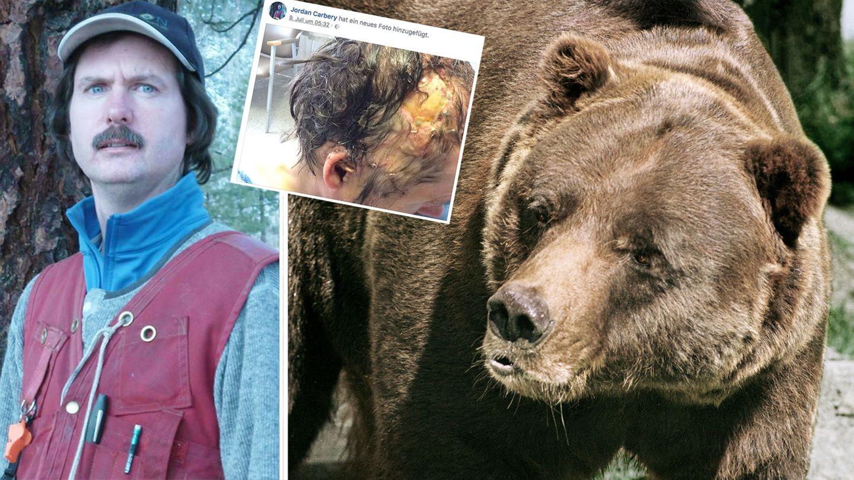Jordan Carbery, ein Facebook-Foto seiner Kopfwunde und ein Grizzlybär
