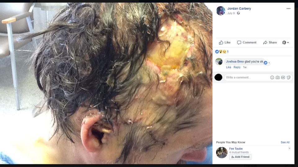 Der Grizzly riss Jordan Carbery einen Teil der Kopfhaut ab - mit den Zähnen