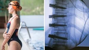 Wirbelsäulenverkrümmung: Neue OP-Methode korrigiert Skoliosen