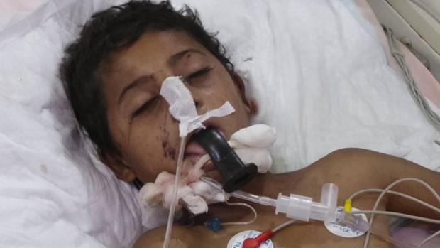 Ein Junge, der den Luftangriff auf den Schulbus überlebt hat, liegt in einem Krankenhaus im Jemen