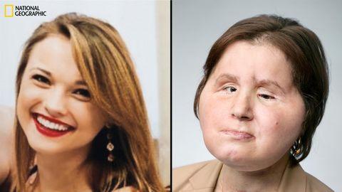 Links ist Katie Stubblefield 17 – acht Monate vor ihrer Selbstverletzung. Rechts ist Katie 22 – 13 Monate nach ihrer Gesichtstransplantation.