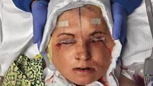 Ein Krankenhausmitarbeiter hält vorsichtig Katies Kopf nach der 31-stündigen Operation. Um ihre Augen zu schützen wurden die Augenlider zugenäht.