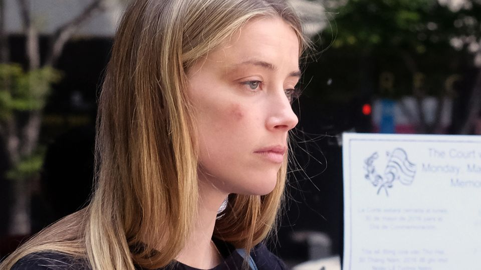 Amber Heard nach der angeblichen Attacke von Johnny Depp im Mai 2016