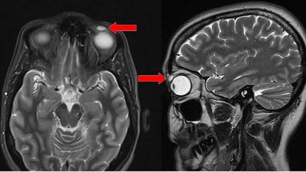 Kontaktlinse im Auge - 28 Jahre lang
