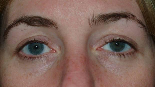 Sehhilfen - Kontaktlinse im Auge sorgt nach 28 Jahren für Probleme