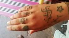 Hakenkreuze und Beleidigungen: In Marokko wurde einMädchen mit erniedrigende Tattoos gebrandmarkt