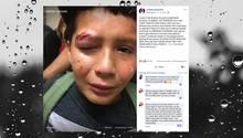 Mobbing: Junge schlägt nicht zurück – weil Jedis das nicht machen würden