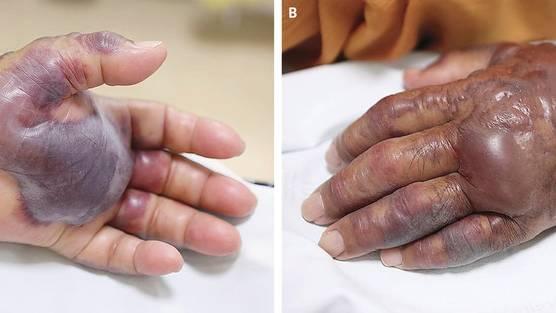 Blaue, geschwollene Hand