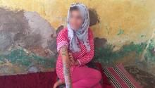 Marokko: Die 17-jährige Khadija wurde gewaltsam am ganzen Körper tätowiert