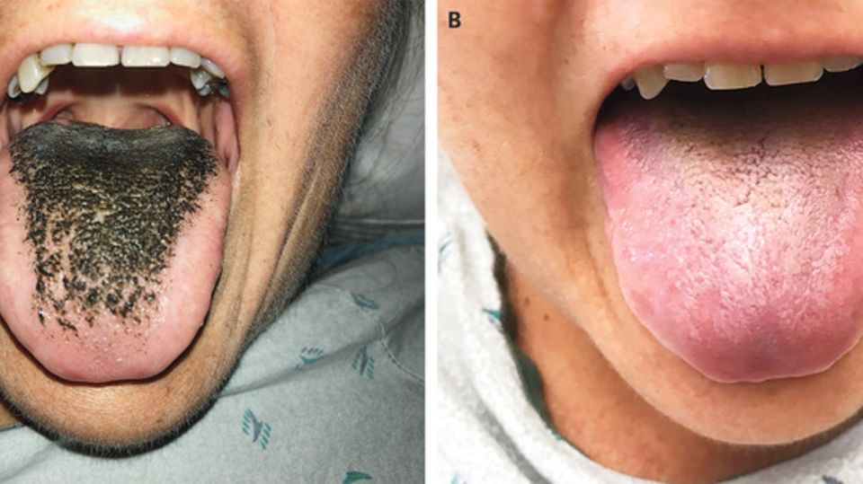 Zunge der Frau beim Arztbesuch (links) und vier Wochen später (rechts)