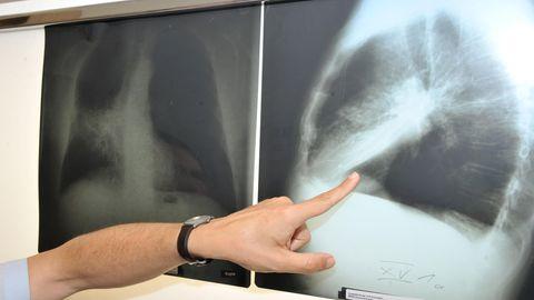 Röntgenbild zeigt mit Krebs befallene Lunge