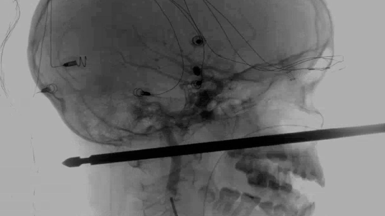 Röntgenaufnahme eines Schädels, in dem ein Fleischspiel steckt