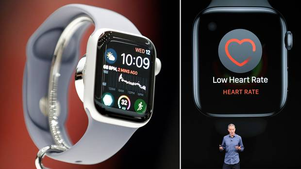 Apple Watch Series 4 hat lebensrettenden EKG-Funktion