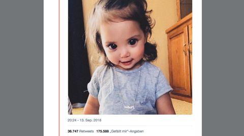 Seltener Gendefekt: Diese Zweijährige hat riesige Augen – doch der Hintergrund ist ernst