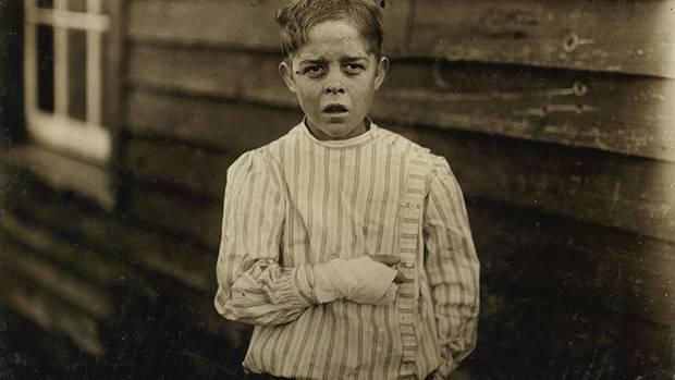 Giles Edmund Newsom war elf Jahre alt, als er in eine Maschine stürzte und zwei Finger verlor.