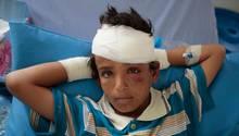 Ein verletztes Kind liegt im Jemen in einem Krankenhaus nach einem Angriff auf einen Schulbus