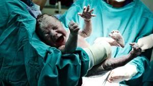 Ein Baby wird von Ärzten per Kaiserschnitt auf die Welt gebracht
