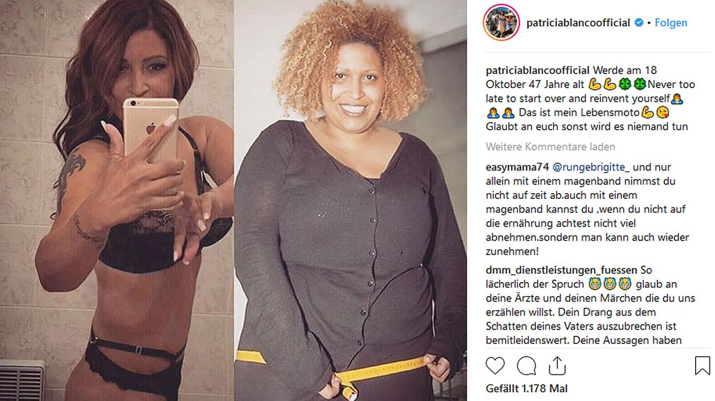 Patricia Blanco Vorher Nachher
