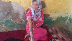 Vergewaltigte 17-Jährige aus Marokko bricht ihr Schweigen