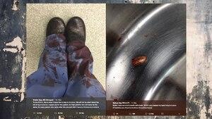 Bilder, die Ärzte aus den USA posteten