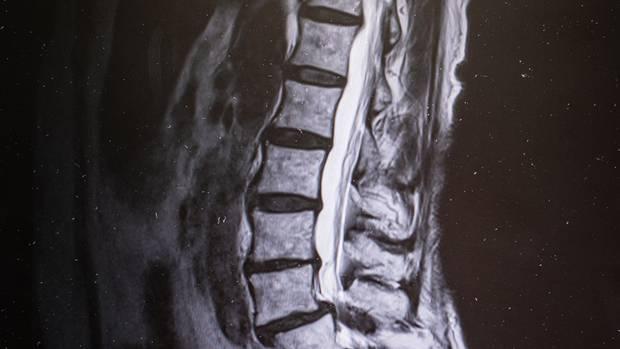 Die Kernspinaufnahme zeigt die Einengung des Nervenkanals, der innerhalb der Wirbelsäule verläuft. Fachbegriff: Spinalkanalstenose