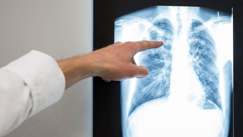 Ein Arzt zeigt auf das Röntgenbild einer Lunge