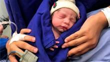 Ein gerade geborenes Baby im Krankenhaus