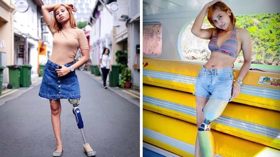 Nach Unfall: Diese Frau verlor ihr Bein - heute ist sie erfolgreiches Model