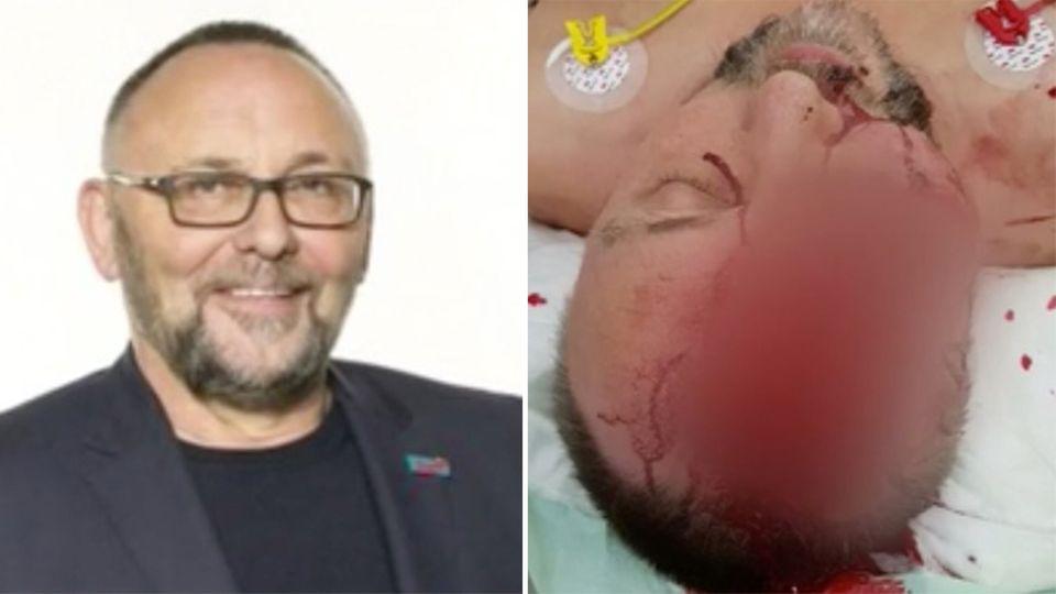 Frank Magnitz: Bremer AfD-Chef wird von Unbekannten angegriffen und schwer verletzt